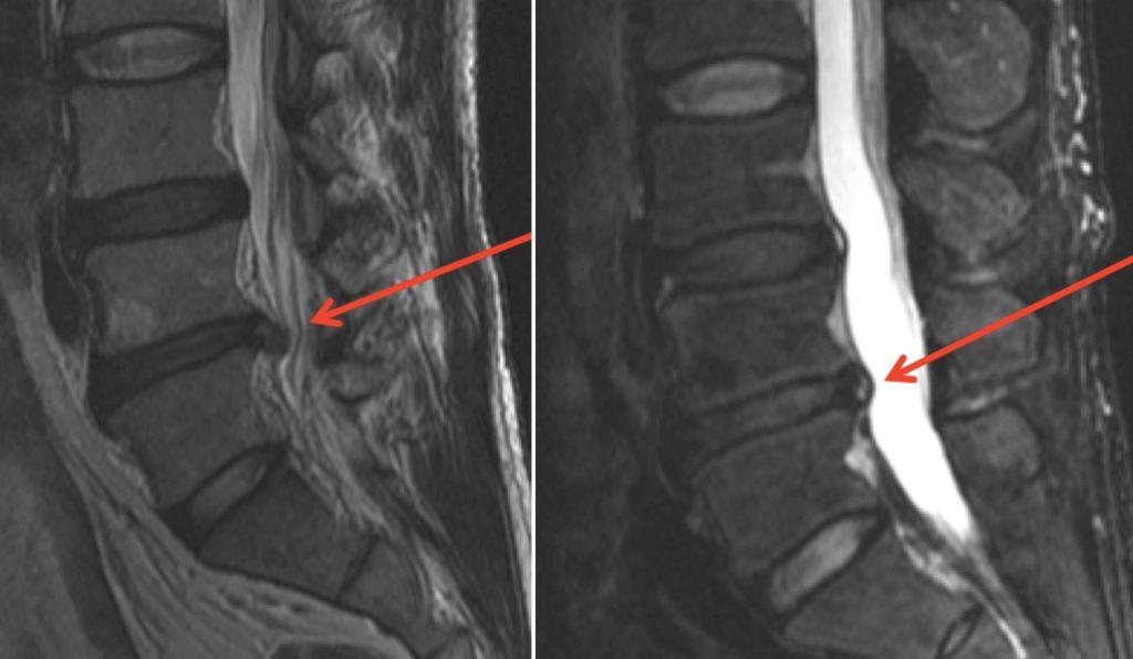 МРТ снимок позвоночника с грыжей межпозвоночного диска