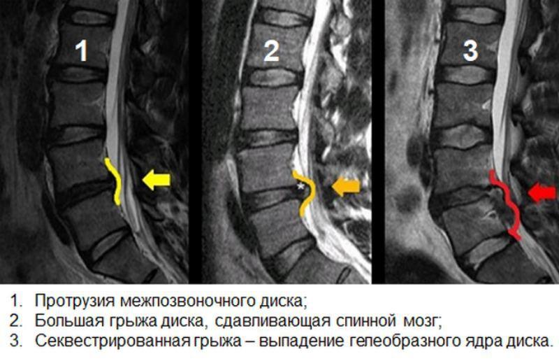 МРТ снимки протрузии, грыжи и секвестрированной грыжи