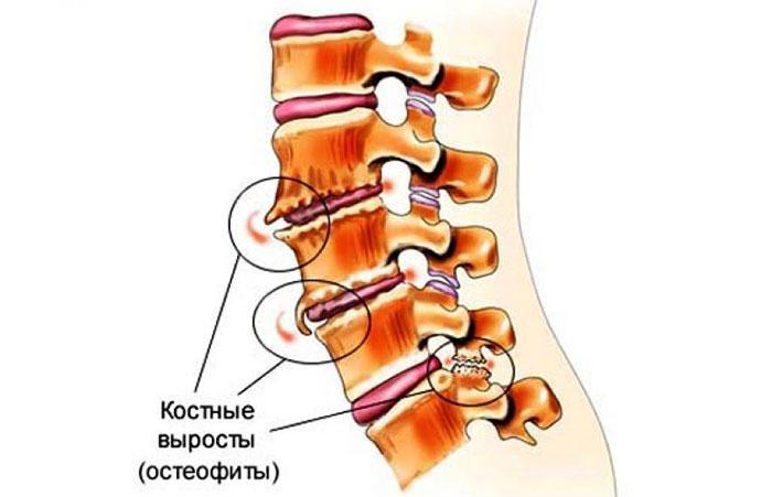 Спондилез, виды остеофитов