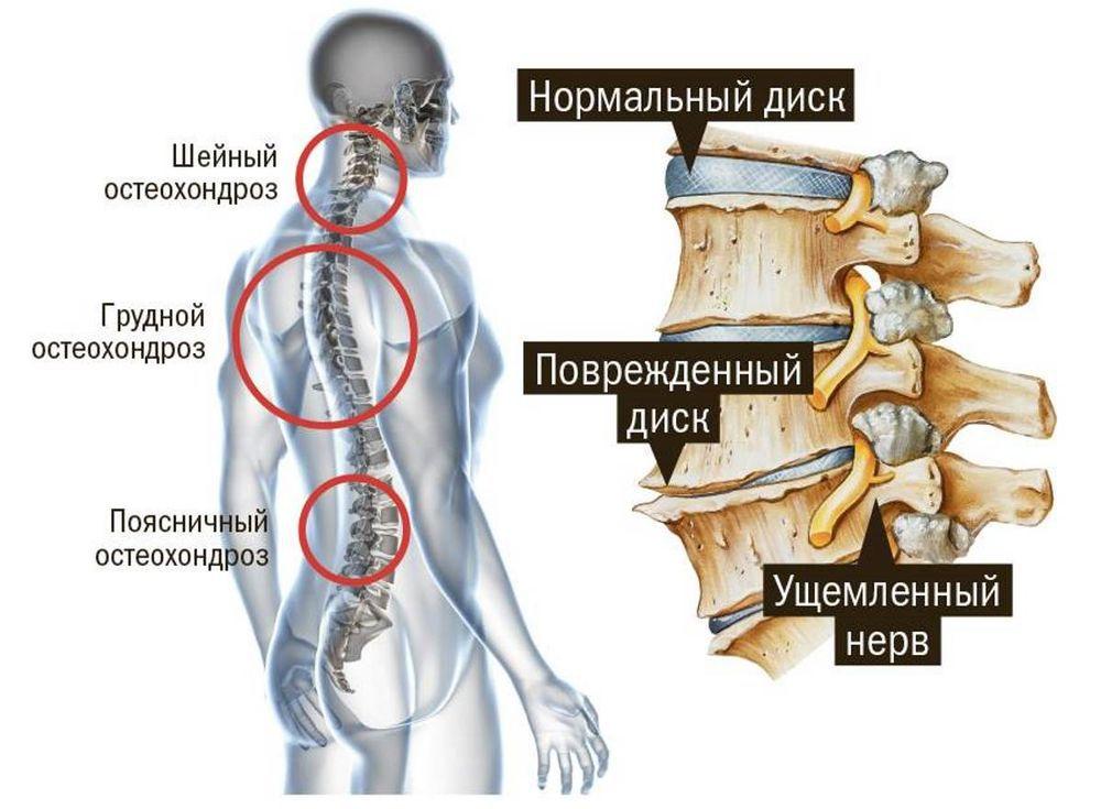 Здоровый и пораженный остеохондрозом межпозвоночный диск