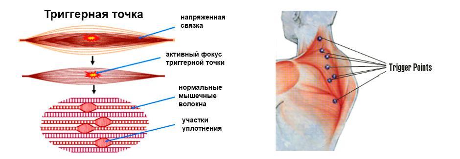 Триггерные точки и нормальные мышечные волокна