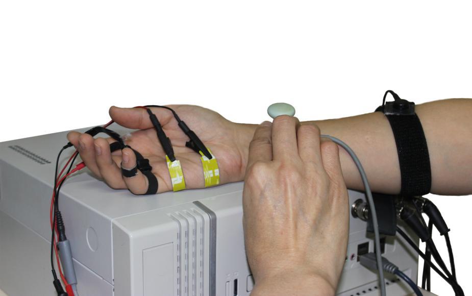 Снятие электронейромиографии руки