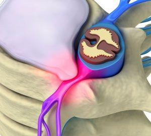 Ущемление спинномозгового корешка грыжей