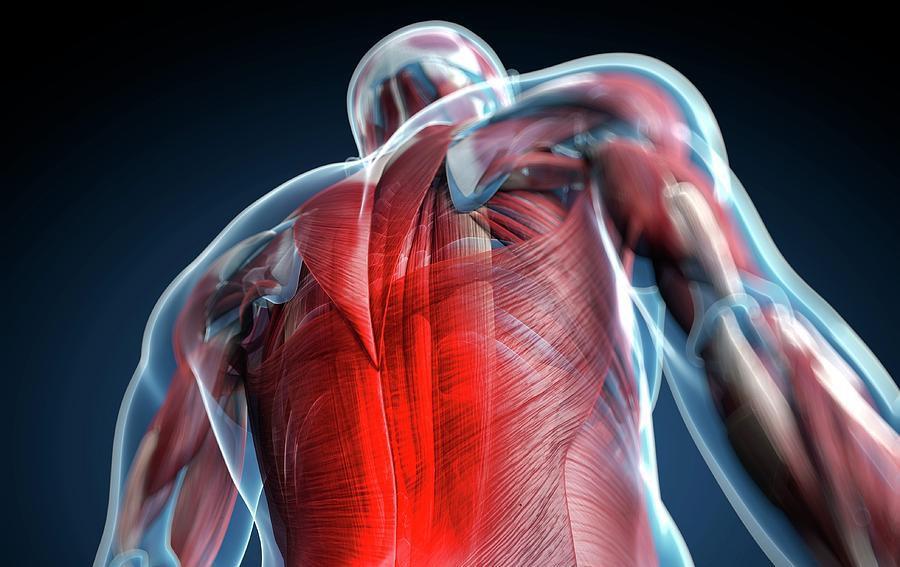 Болезненность мышц спины при миофасциальном синдроме