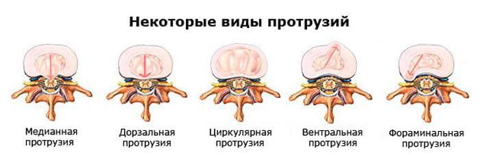 Виды протрузий межпозвонковых дисков