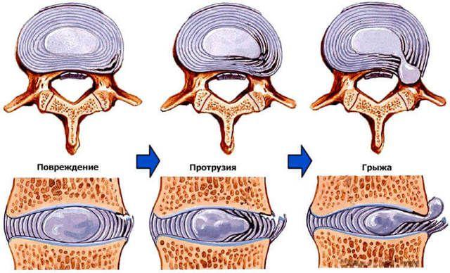 Этапы формирования грыжи: повреждение, протрузия, экструзия