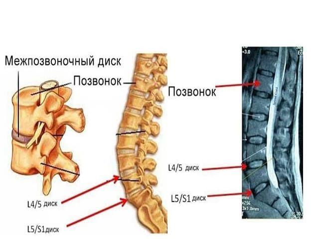 Расположение диска L5—S1
