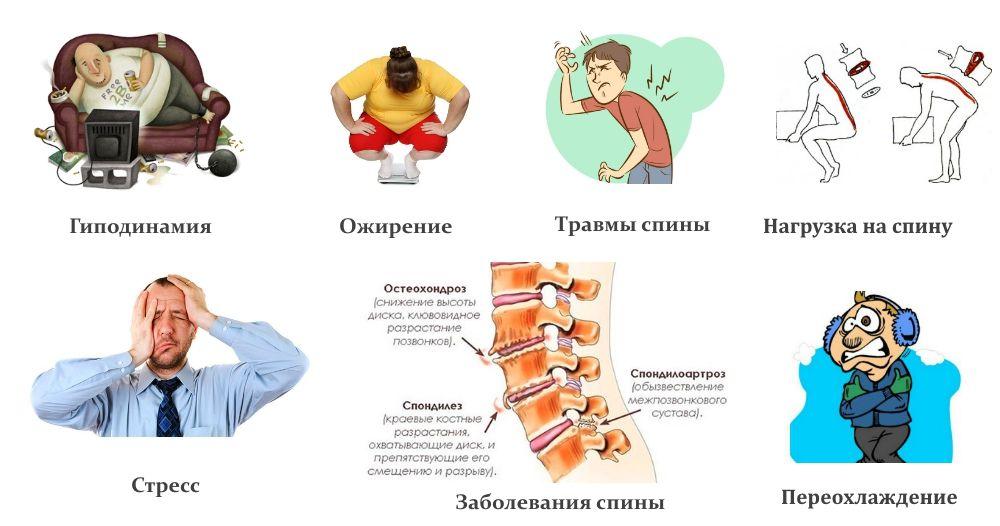 Причины болей в спине и остеохондроза