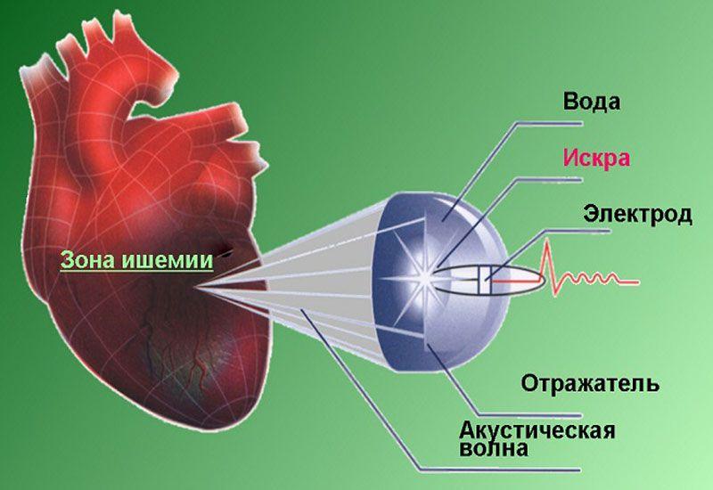 Ударно-волновая терапия сердца