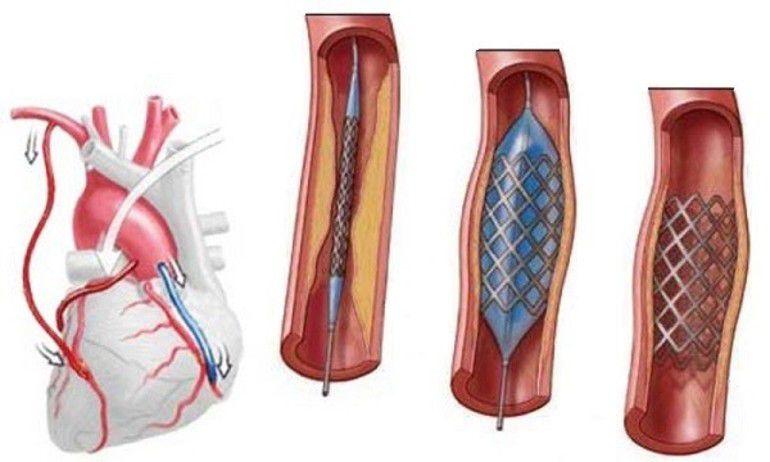 Эндоваскулярная коронароангиопластика