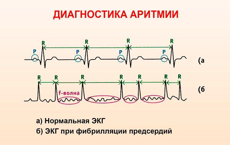 ЭКГ-признаки аритмии