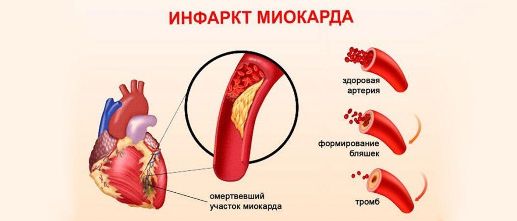 Инфаркт миокарда при ИБС