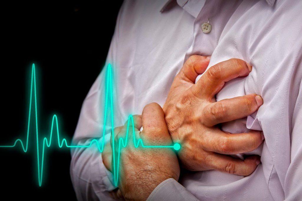 Стенокардия (боль в груди)