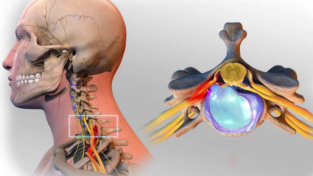 Грыжа диска шейного отдела позвоночника