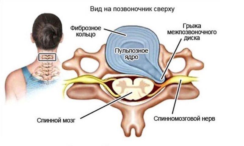 Строение межпозвоночного диска и грыжа