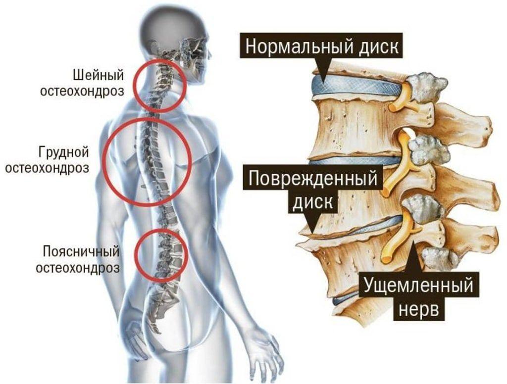 Здоровый диск, остеохондроз и ущемленный нерв