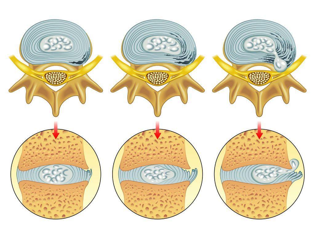 Механизм формирования протрузии и грыжи межпозвоночного дичка