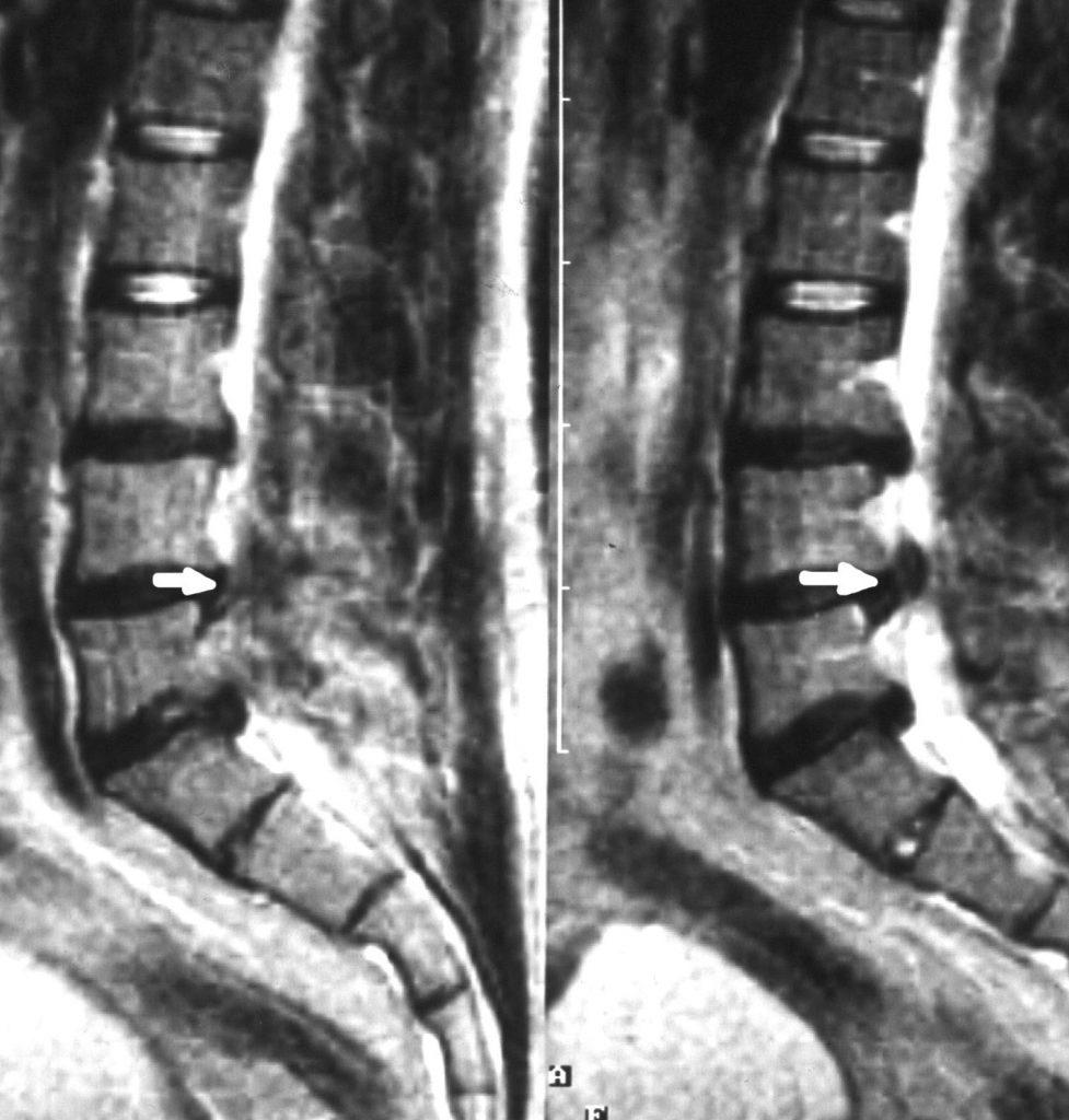 Протрузия L3—L4 на МРТ снимке