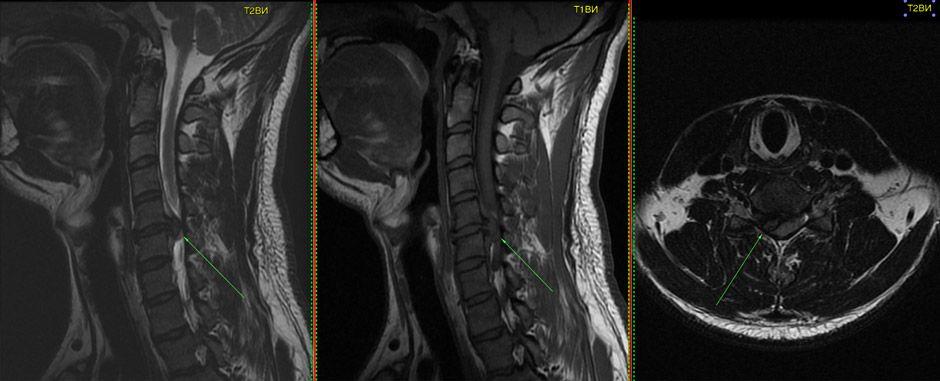 Грыжа С5—С6 на МРТ снимках