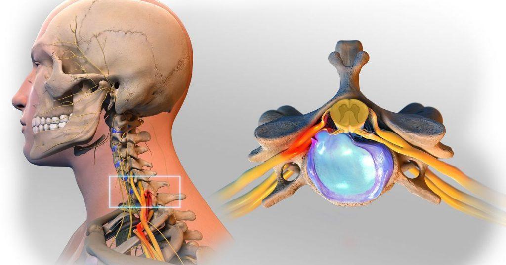 Защемление нерва межпозвоночной грыжей в шейном отделе позвоночника