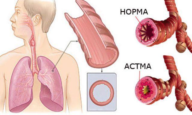 Бронхи в норме и при бронхиальной астме