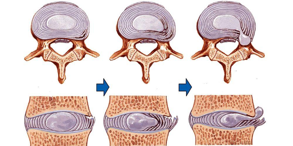 Этапы формирования грыжи диска