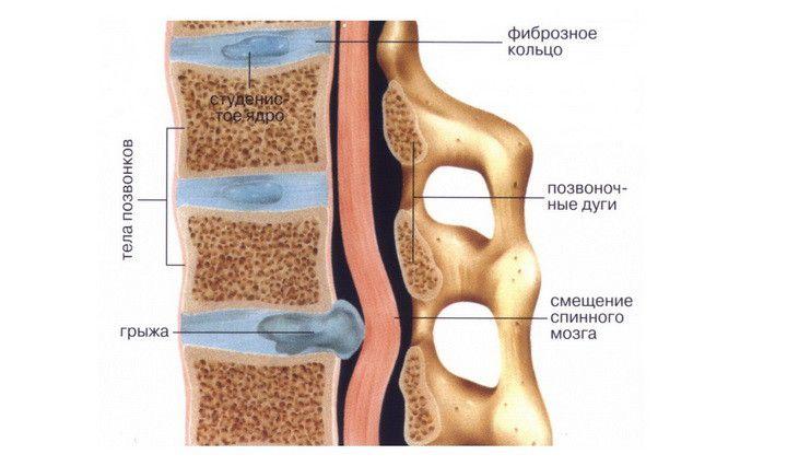Строение позвоночника и межпозвонкового диска