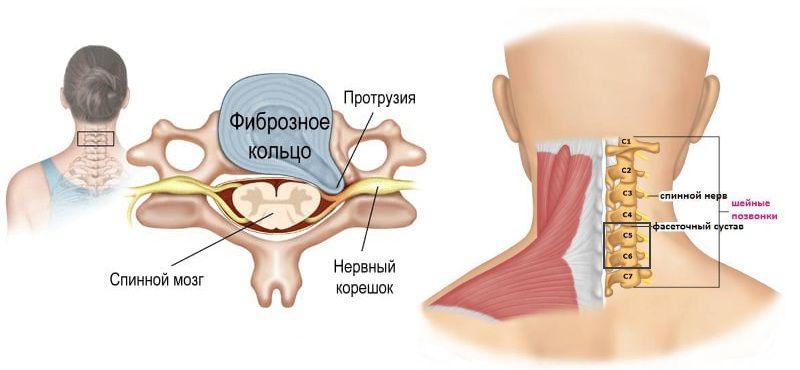Межпозвоночная грыжа, ущемляющая спинномозговой корешок