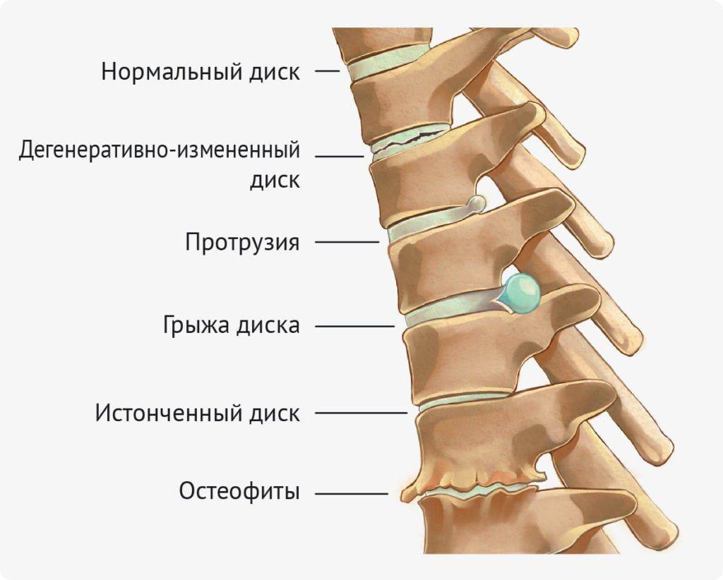Различия между остеохондрозом, протрузией, грыжей диска