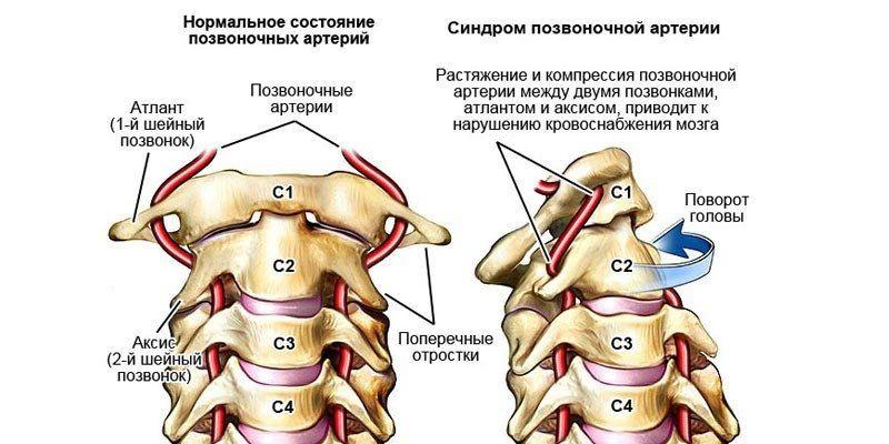 Нормальное состояние и синдрома сдавления позвоночной артерии