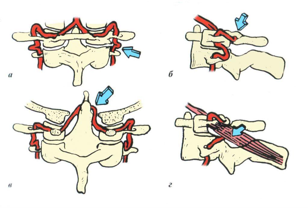 Варианты сжатия позвоночной артерии