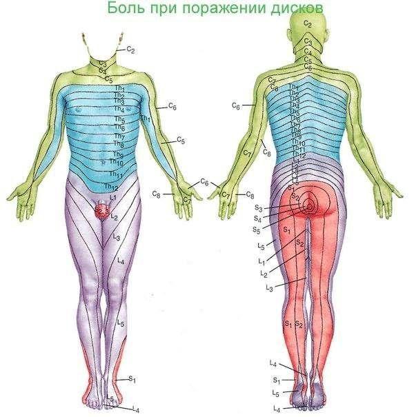 Иррадиация болей при поражении различных спинномозговых нервов