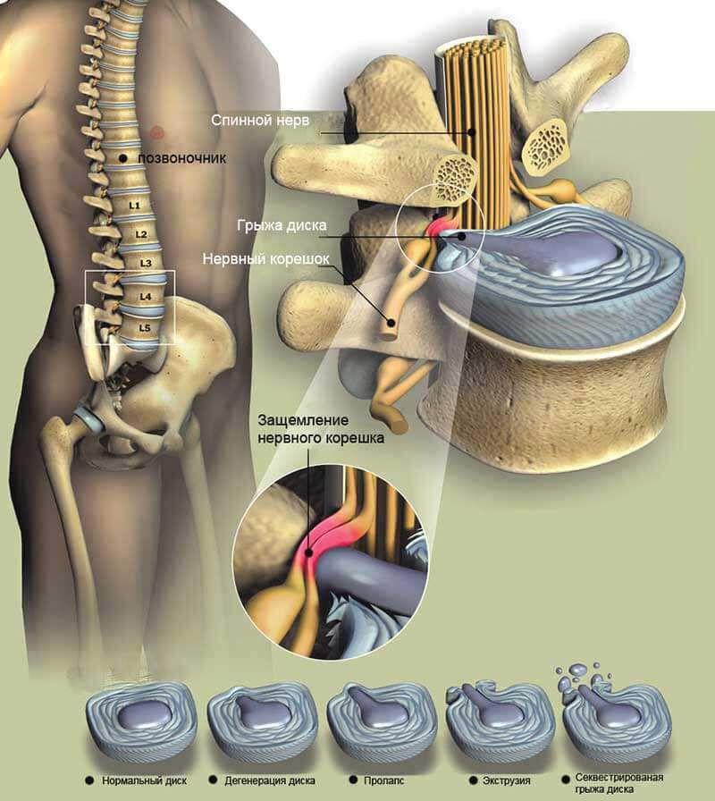 Протрузия, грыжа, секвестр и компрессия спиннномозговых корешков