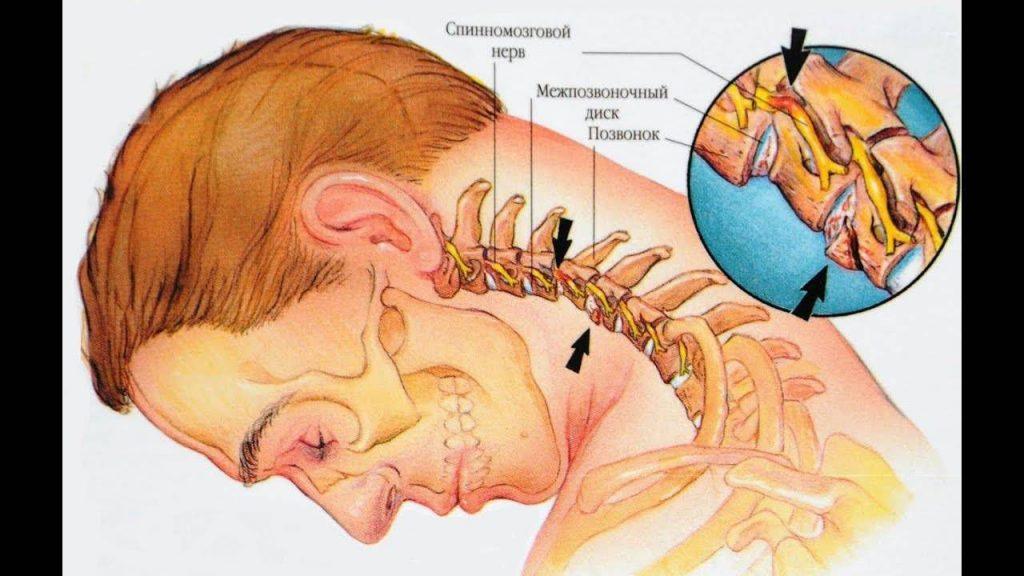 Механизм сдавливания спинномозговых корешков протрузией