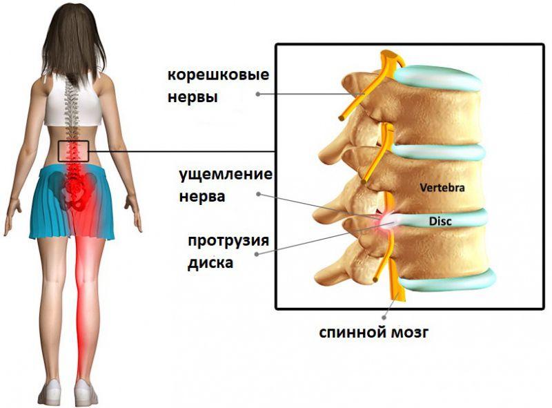 Иррадиаация болей в ногу при протрузии поясничного отдела позвоночника