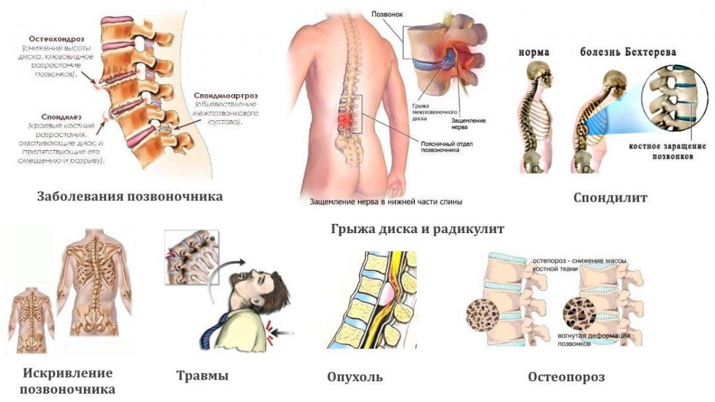 Виды патологий позвоночника