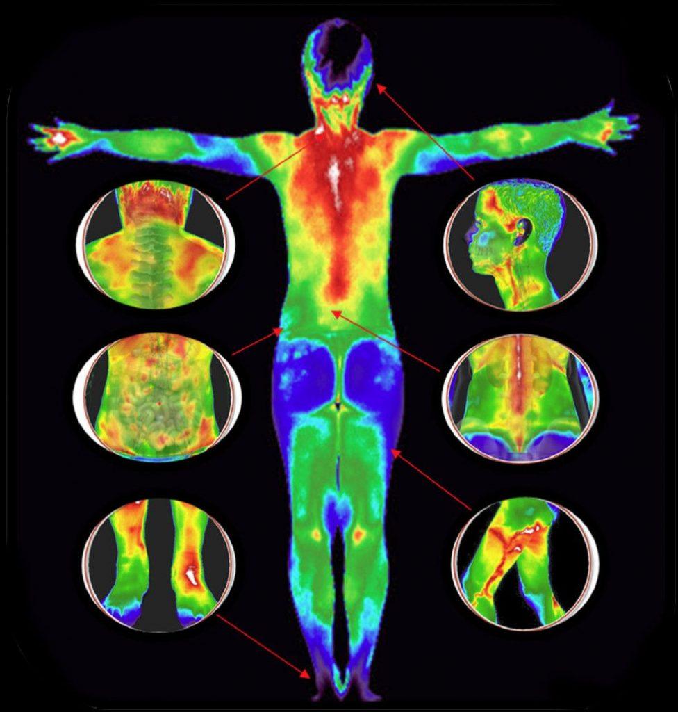 Термография человеческого тела