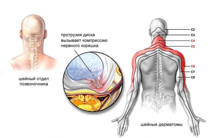 Особенности иррадиации болей при протрузии шейного отдела позвоночника