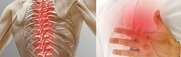 Боли в груди при протрузии грудного отдела