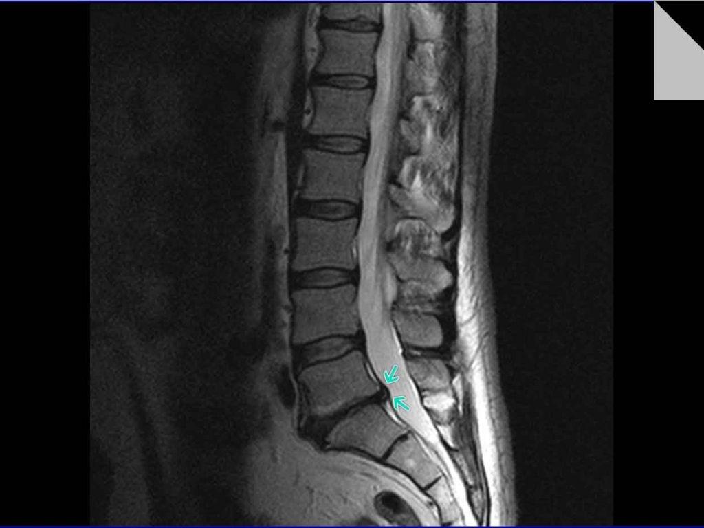 Протрузия поясничного отдела позвоночника на МРТ снимке