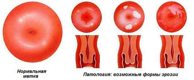Возможные формы эрозии шейки матки