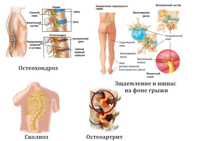 Распространенные заболевания позвоночника