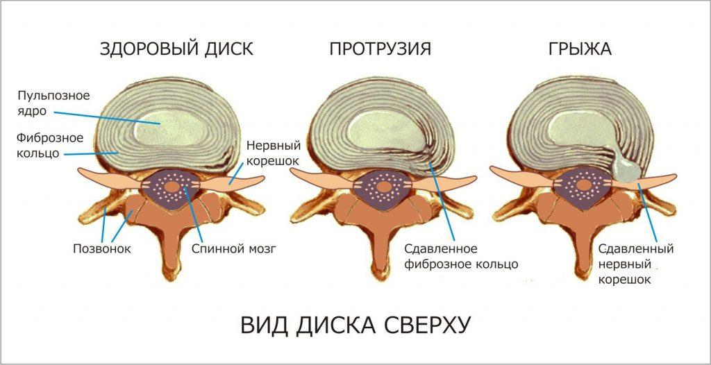 Здоровый диск, протрузия и грыжа
