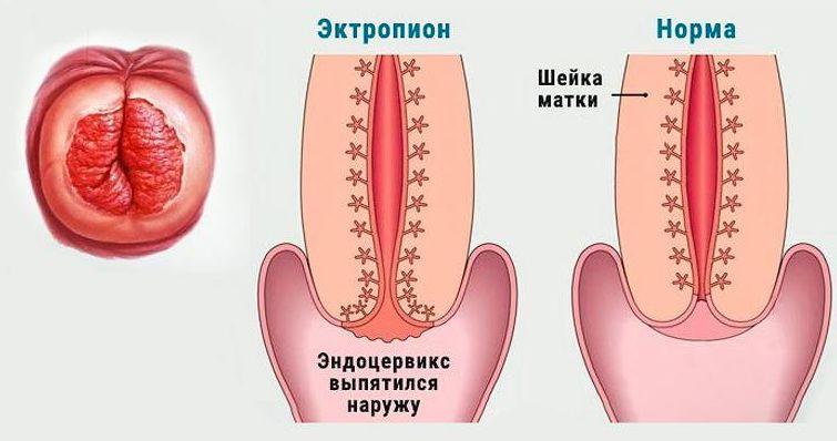 Эктропион и норма