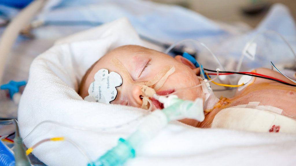 Новорожденный с родовой травмой под аппаратом