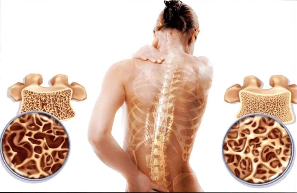 Схематическое изображение остеопороза