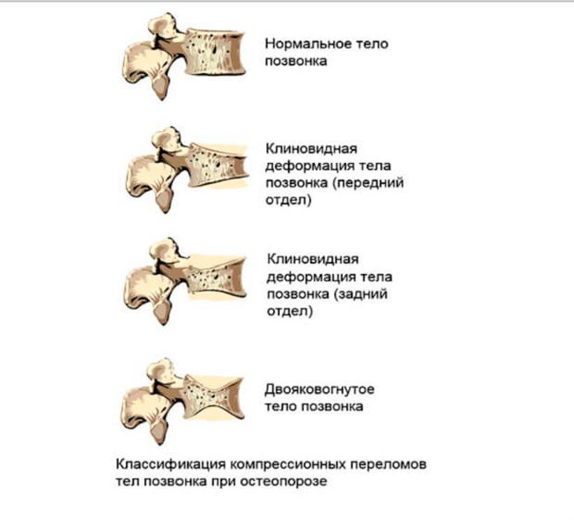 Виды компрессионных переломов