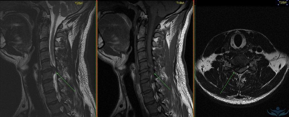 МРТ шейного отдела при протрузии