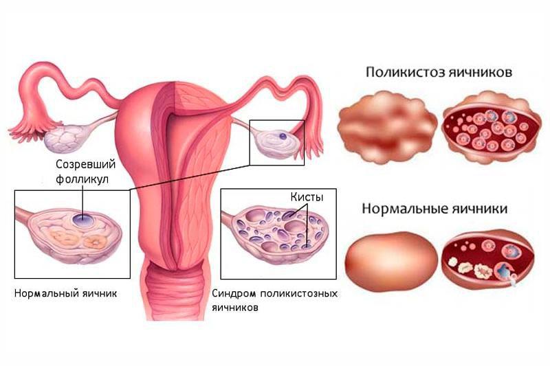 Нормальный яичник и при поликистозе
