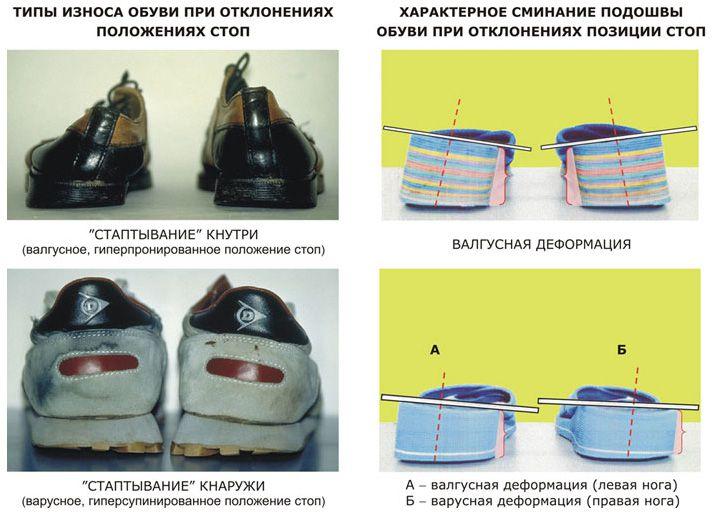 Неравномерный износ обуви